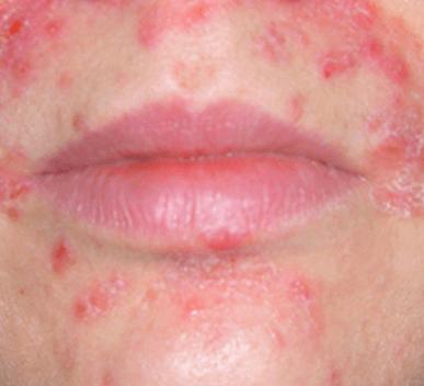 perioralis dermatitis paraziták az emésztőrendszer tüneteiben és kezelésében