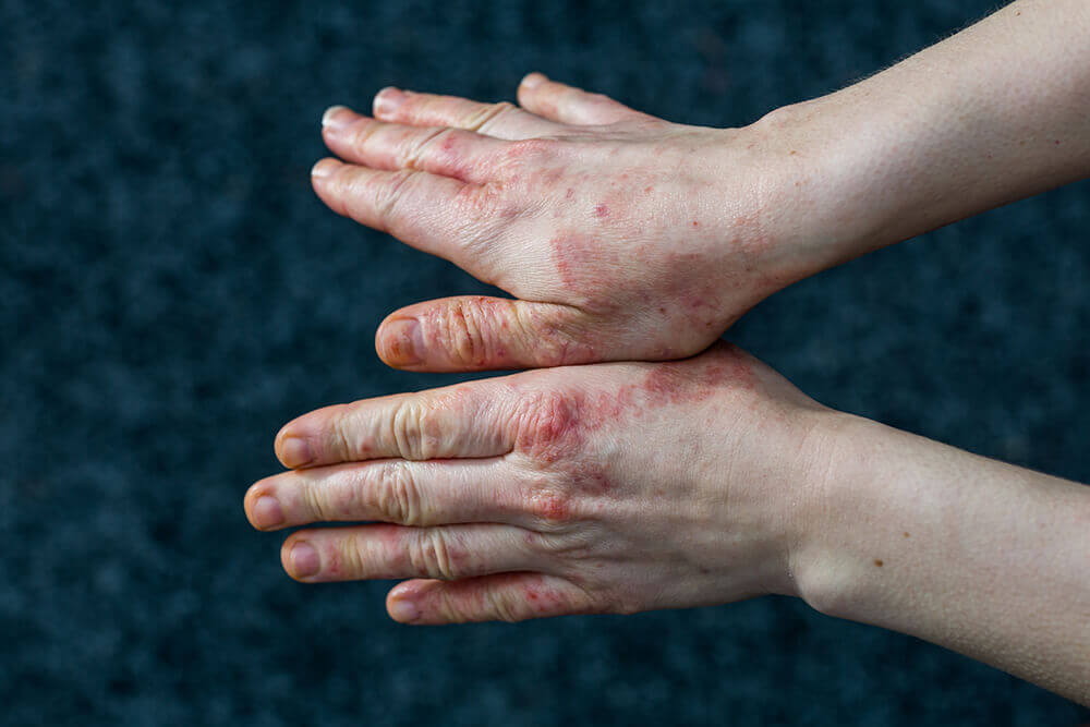 Skin Eruptions and Lesions