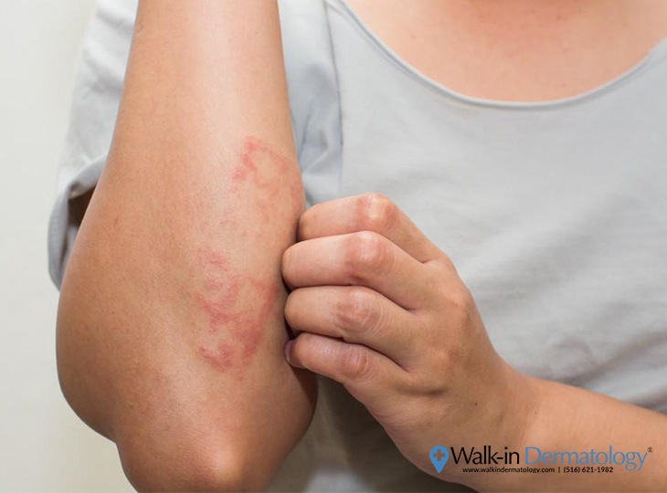 Eczema | Walk-in Dermatology