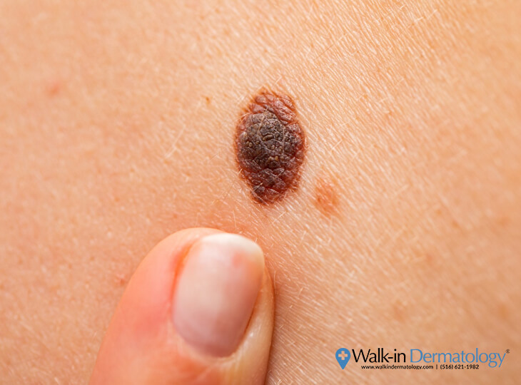 What Happens if you Accidentally Scratch Off a Mole? | Walk-in Dermatology