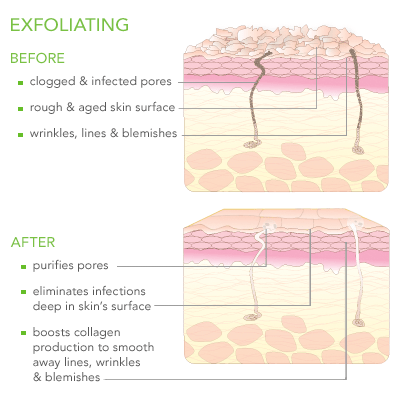 Exfoliating Before and After