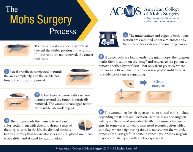 The Mohs Surgery Process - ACMS