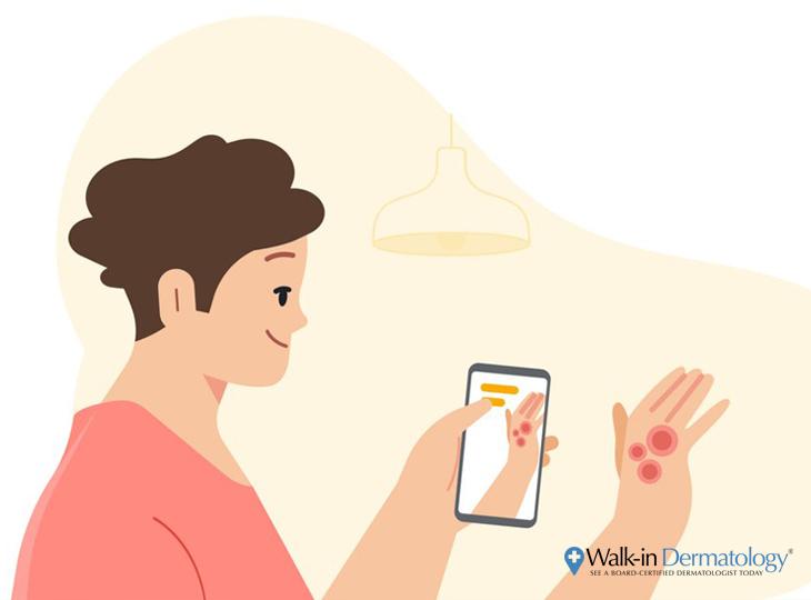 Google AI Skin App